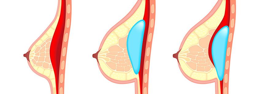 Die Brust die Erhöhung der Folge