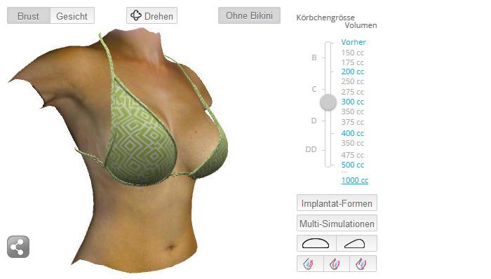 Zu groß brustvergrößerung Brustvergrößerung mit